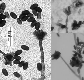 Spore di muffa nera Stachybotrys osservate al microscopio
